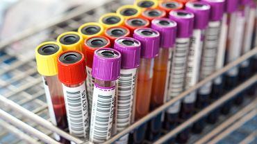Markery nowotworowe są badane najczęściej na podstawie próbki krwi