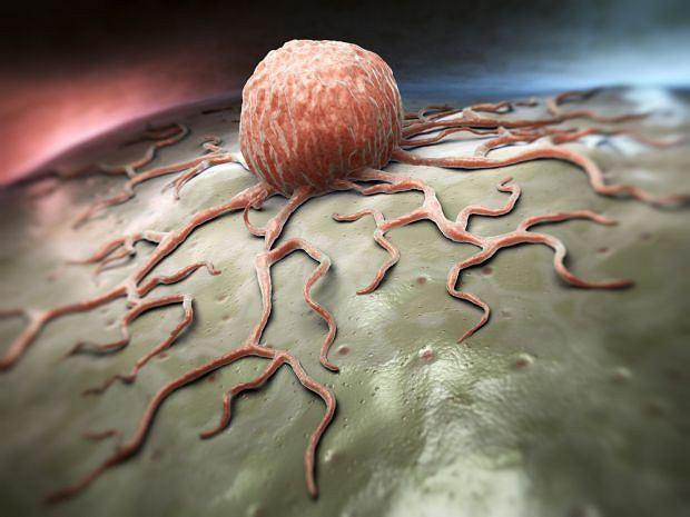 Ten rodzaj zmiany pojawia się przede wszystkim w obrębie tkanki miękkiej