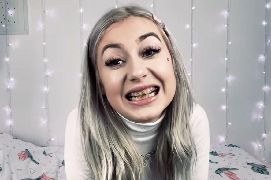 Kinia Wiczyńska pokazuje, jak wyglądały jej zęby po nieudanym zabiegu