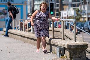 Koślawość kolan u dzieci - jak rozpoznać problem? [Przyczyny, objawy, leczenie]