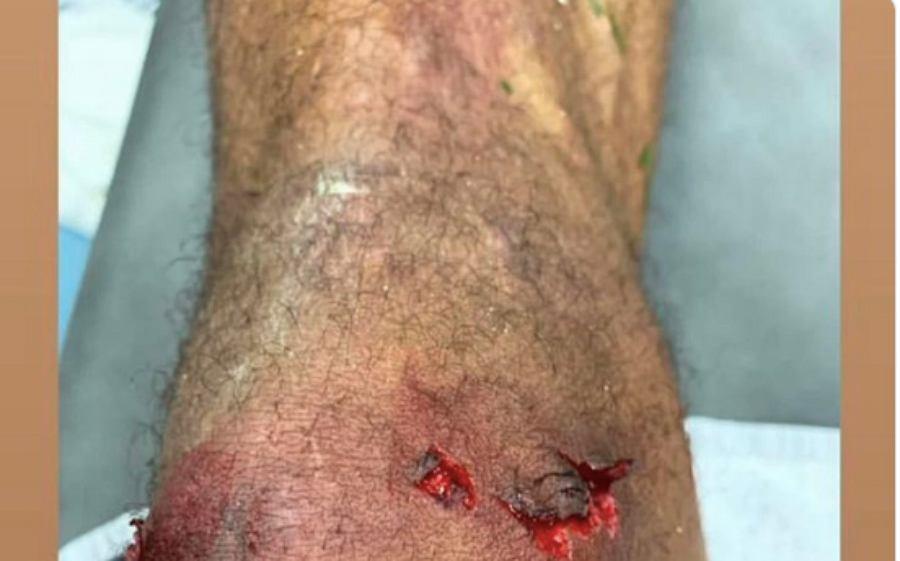 Raphael Varane pokazał zdjęcie kontuzjowanej nogi po meczu Real - Barcelona