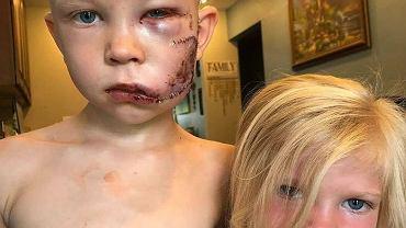 Bridger Walker doznał poważnych obrażeń twarzy po tym, jak uratował swoją młodszą