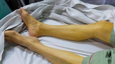 Zażółcenie skóry jest to skutek podwyższonego stężenia bilirubiny we krwi