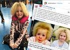 """Dziewczynka cierpi na bardzo rzadką chorobę. """"Ma włosy jak Einstein"""""""
