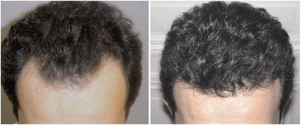 Pacjent po zabiegu przeszczpu włosów metodą S.A.F.E.R, Przeszczep włosów: nowa, lepsza metoda, wypadanie włosów, włosy
