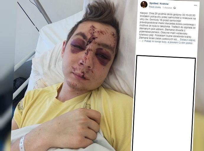 22-latek szuka kierowcy, który go potrącił