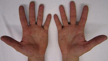 Rozpoznaj stan zdrowia po swoich dłoniach
