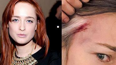 Matylda Damięcka oskarża policjanta o pobicie. Ma krwawą ranę od uderzenia: Co to ku*wa było? Mam to nagrane