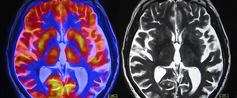 Jak koronawirus uszkadza mózg - nowe wyjaśnienie