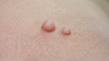 Tłuszczaki u dzieci nie pojawiają się często - to przypadłość typowa dla osób zdecydowanie starszych. Te niezłośliwe guzy wywodzą się z dojrzałej tkanki tłuszczowej.