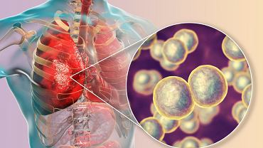 Moraxella catarrhalis - to bakteria, która odpowiada za schorzenia układu oddechowego
