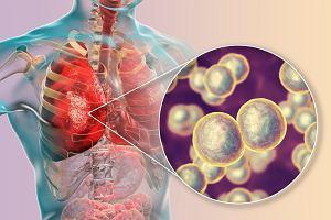 Co to jest moraxella catarrhalis i jakie choroby wywołuje?