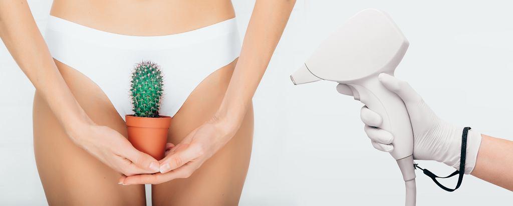 Depilacja bikini może zostać wykonana na różne sposoby. Zdjęcie ilustracyjne, Peakstock/shutterstock.com