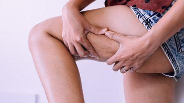 Grube nogi można wysmuklić stylizacją lub odpowiednim obuwiem.