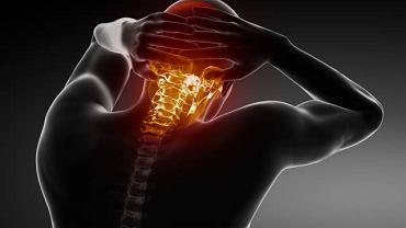 """Kifoza to zwyrodnienie kręgosłupa, potocznie nazywane """"garbem"""""""