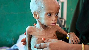 Niedożywione 9-miesięczne dziecko w szpitalu w Mogadiszu. Jego matka uciekła z nim z terenów, na których panuje susza