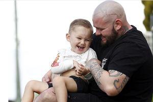 Dziecko przeszło operację czaszki. Została po niej blizna. Tata zrobił coś wspaniałego