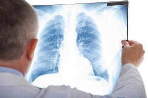 Badanie, które wykrywa wczesnego raka płuc. Każdy palacz powinien je zrobić raz w roku