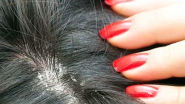Sucha i łuszcząca się skóra głowy? Prawdopodobnie popełniasz te błędy. Sprawdź, czego nie robić (zdjęcie ilustracyjne)