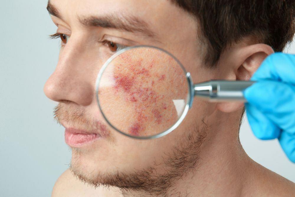 Choroby skóry to nie tylko problem estetyczny, chociaż ten aspekt również jest bardzo istotny. Nowoczesna dermatologia pozwala się z nim uporać