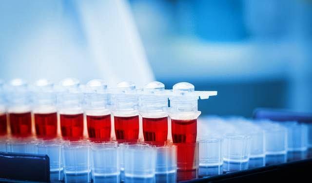 Poziom TSH, hormonu wpływającego na funkcjonowanie tarczycy, określa się w oparciu o badanie krwi