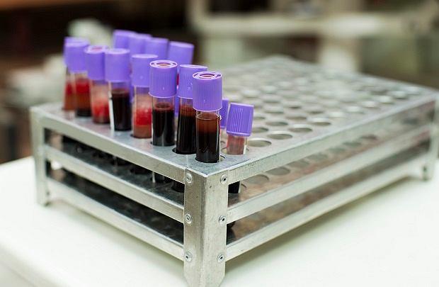 Anemia wynika najczęściej z niedoboru żelaza