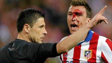 Jednym z głównych bohaterów derbów Madrytu był Mario Mandżukić. Chorwat mocno ucierpiał w starciu z Sergio Ramosem, o co miał pretensję do całego świata. Najwięcej oberwało się sędziemu głównemu i technicznemu. Warto jednak dodać, że w powtórkach widać było, że Ramos napastnika rywali nie uderzył specjalnie.