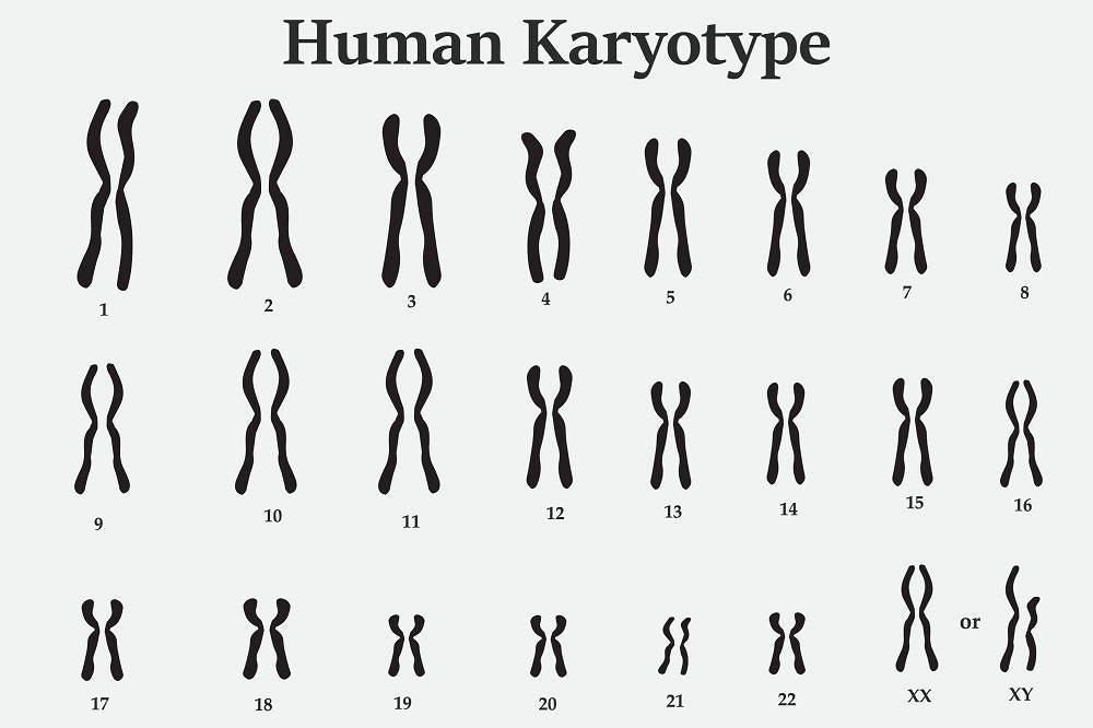Kariotyp to zestaw chromosomów komórki somatycznej organizmu. Prawidłowy kariotyp człowieka złożony jest z 22 par autosomów oraz 1 pary chromosomów płci, które oznaczane są symbolami X i Y.