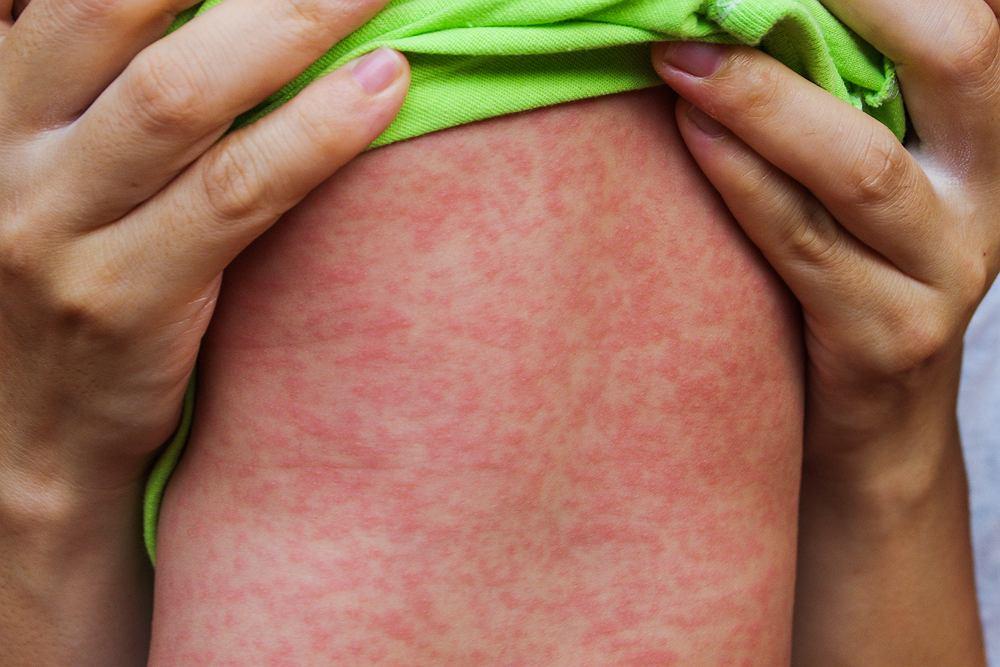 W Europie coraz więcej osób choruje na odrę