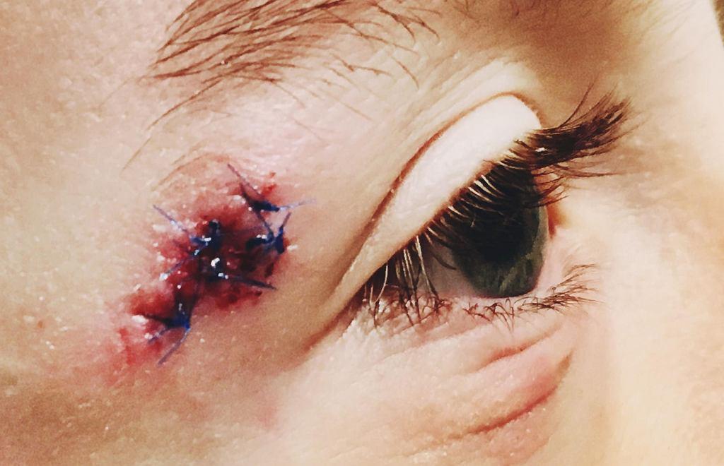 Każdorazowe postępowanie z ranami zależy od szeregu czynników: miejsca zranienia, rozległości i głębokości, przyczyn powstania, a nawet stanu ogólnego chorego i jego cech osobniczych