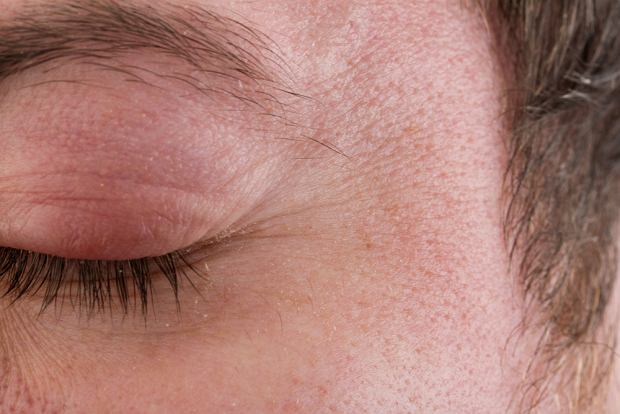 Jaglica (choroba oczu): objawy, leczenie