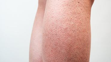 2 triki pielęgnacyjne na piękne nogi na lato. Zapomnij o 'truskawkowych nogach
