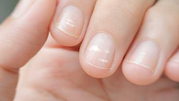 Białe plamki na paznokciach w zdecydowanej większości przypadków są efektem uszkodzeń mechanicznych i błędów w manicure.