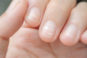 Białe plamki na paznokciach - co oznaczają i jak się ich pozbyć?
