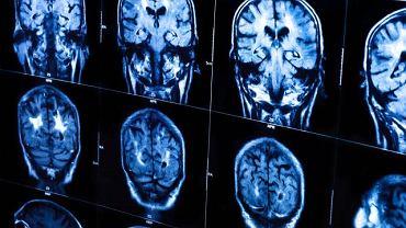 Choroba Glińskiego-Simmondsa spowodowana jest niedoczynnością przysadki mózgowej, która reguluje gospodarkę hormonalną niemal całego organizmu