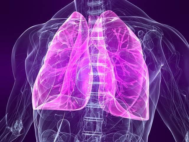 Idiopatyczne włóknienie płuc to jedna z kilkunastu chorób śródmiąższowych płuc. Schorzenia charakteryzują się różnego typu zmianami chorobowymi w płucach, które nie są spowodowane ani nowotworem, ani infekcją