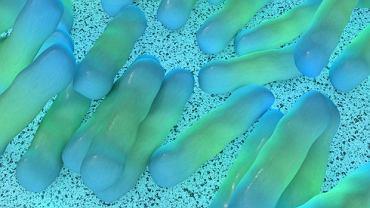 Rozwój martwiczego  zapalenia powięzi może być spowodowany infekcją bakteryjną