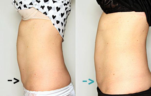 Po lipolizie i endermologii udało się zmniejszyć 'daszek'. Zdjęcie z lewej stan 'przed', z prawej 'po'