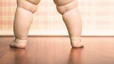 Według WHO ponad 20 mln dzieci poniżej 5. roku życia ma nadwagę lub otyłość. W wieku 5-17 lat problem ten dotyka nawet 10% dzieci (tj. ponad 150 mln dzieci na świecie).