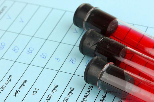 Alfa-fetoproteina (AFP) to marker nowotworowy, którego obecność w surowicy nie zawsze oznacza chorobę. Wzrost stężenia AFP obserwuje się m.in. u kobiet w ciąży