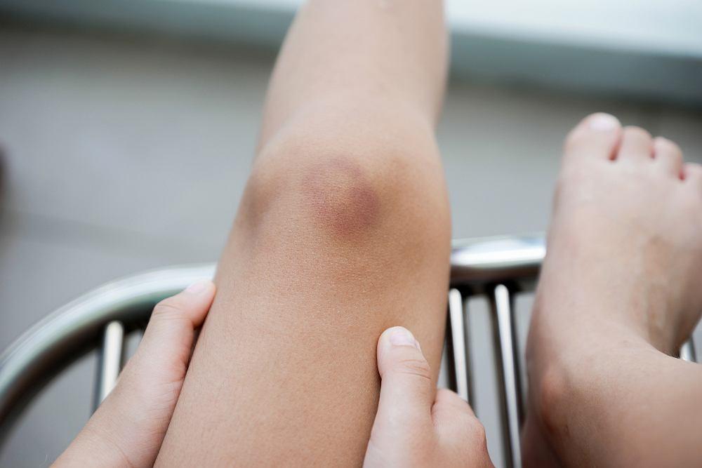 Siniaki na nogach, czyli fioletowe plamy, to krwiaki, zwane także podbiegnięciami krwawymi.