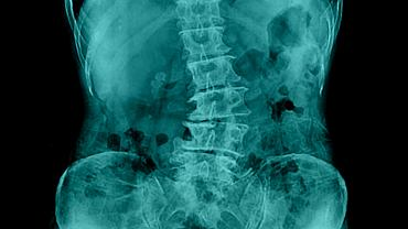 Skolioza to skrzywienie trójpłaszczyznowe - w płaszczyźnie czołowej (boczne skrzywienie kręgosłupa), strzałkowej (tzw. ordoskolioza albo kifoskolioza) i poziomej.  Przy tej wadzie kręgosłup zamiast naturalnego, delikatnie łukowatego wygięcia, swoim kształtem przypomina literę S