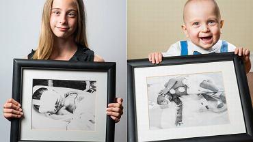 Wcześniaki ze swoimi zdjęciami tuż po urodzeniu