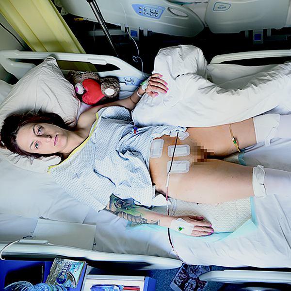 Aga Szuścik tuż po operacji wycięcia macicy. Zdjęcie z projektu 'To się nie zdarza'