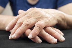 Choroby reumatyczne - co je powoduje, jak wygląda ich diagnostyka, a jak leczenie?