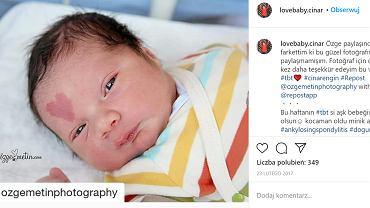 Pięć lat temu w Turcji urodziło się 'dziecko miłości' z nietypowym znamieniem na twarzy. Jak teraz wygląda?