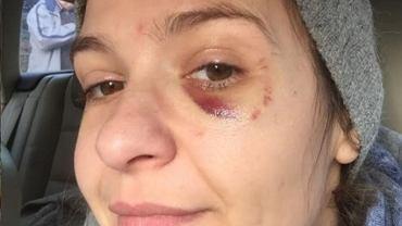 """Joanna Koroniewska została ranna. """"Techniczny nokaut"""". Czuła dyskomfort i pieczenie oka"""