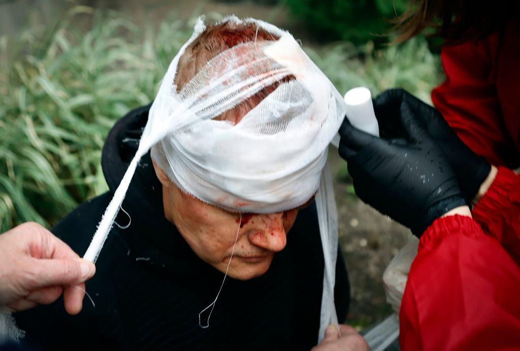 11.10.2020, Mińsk, jeden z rannych podczas starć z milicją.