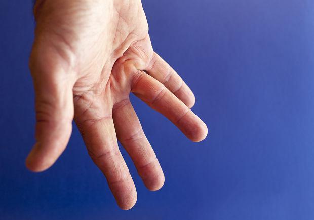PrzykurczDupuytrena: przyczyny, objawy, leczenie