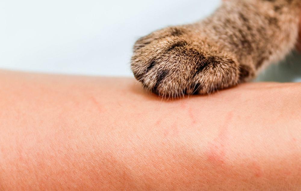 Choroba kociego pazura rozpoczyna się od zadrapania skóry przez zainfekowanego kota